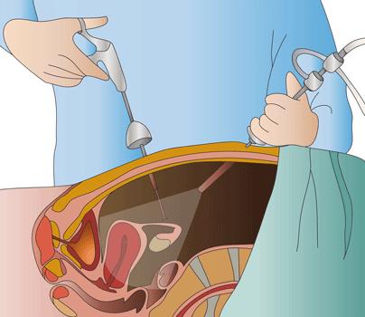 Resultado de imagen de cirugía laparoscopica